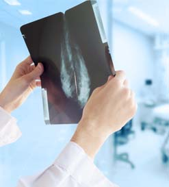 Breast calcifications – their definitions and types