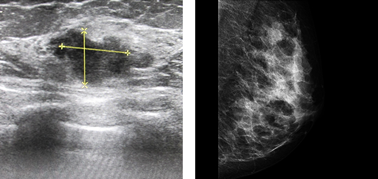 ultrasound and breast mammography