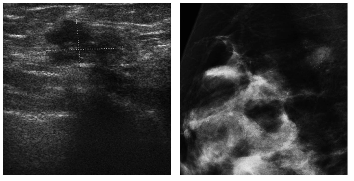 usg i mammografia piersi