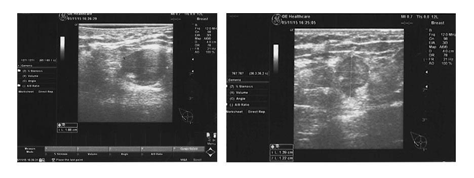 ultrasound breast